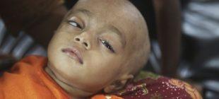 ''Rohingya çocuklarının aşırı yetersiz beslenmesiyle baş etmek için 76 milyon dolar gerek ''